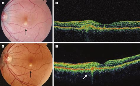 Clinical and Tomographic Features of Macular Punctate
