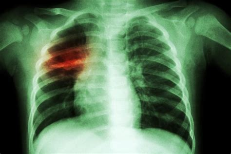 New treatments for MDR-, XDR-TB show promise in small